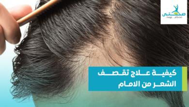 كيفية علاج تقصف الشعر من الأمام
