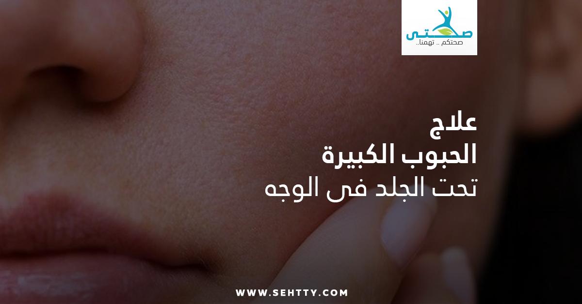 علاج الحبوب الكبيرة تحت الجلد في الوجه بأمان وفعالية تامة صحتي