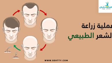 عملية زراعة الشعر الطبيعي